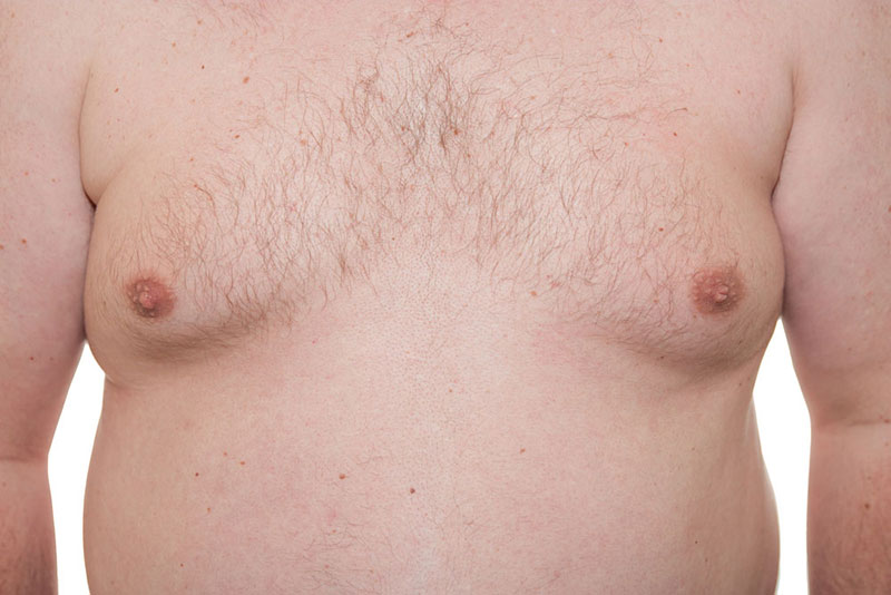 Man Boobs (Gynecomastia)